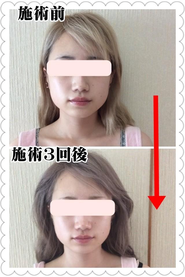 小顔・整顔矯正のビフォーアフター